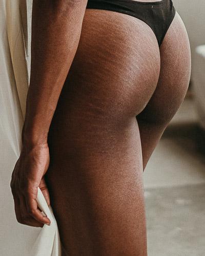 ideale Hautpflege bei Dehnungsstreifen durch die Schwangerschaft